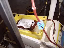 emutrasfusione